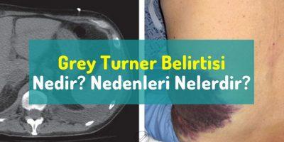 Grey Turner belirtisi nedir? Nedenleri nelerdir?