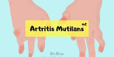 Artritis mutilans nedir? Teleskopik parmak nedir?